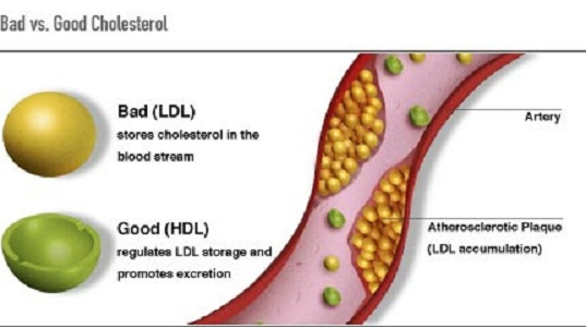 The Cholesterol Myth – Misconceptions Exposed